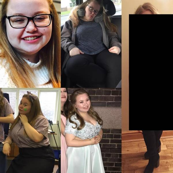 Girl Loses Half Her Weight And Turns Into A Beauty