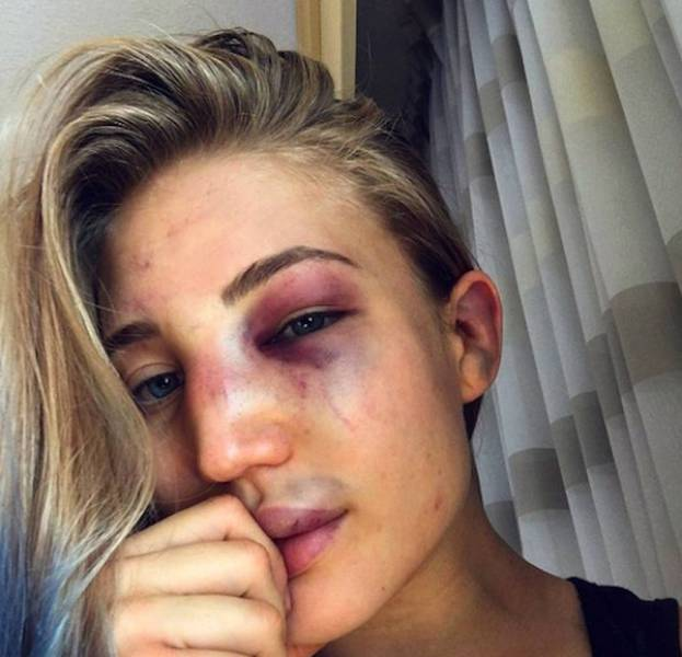 MMA Fighter Anastasia Yankova Needs Just Her Beauty To Knock You Out