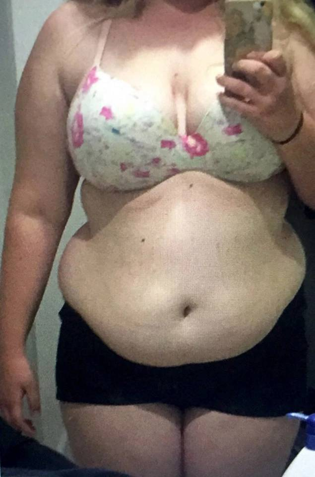 Girl Transforms Herself Completely By Losing 64 Kilos