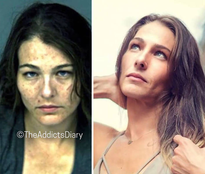 How Drug Addiction Looks Before And After