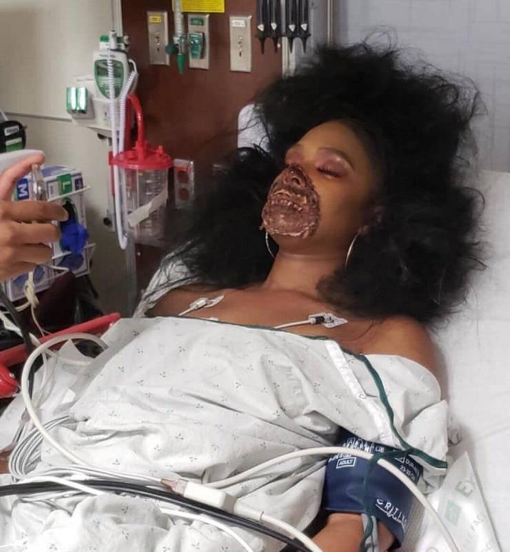 She's Severely Injured!