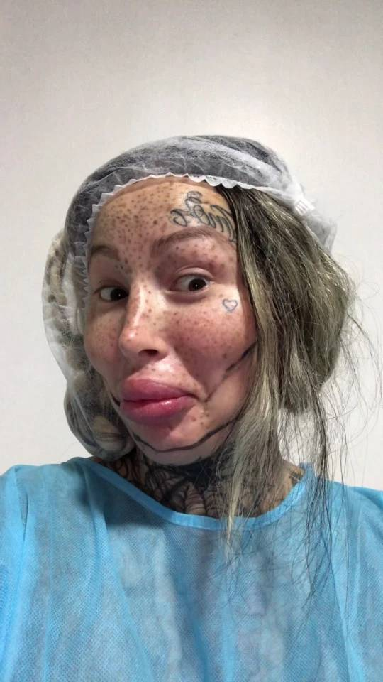 Woman Spends $100 Thousand To Turn Into A Doll, Now Has Serious Health Problems