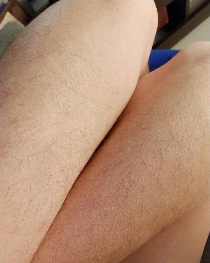 """Januhairy"" Is Here, And Women Aren't Hiding It"