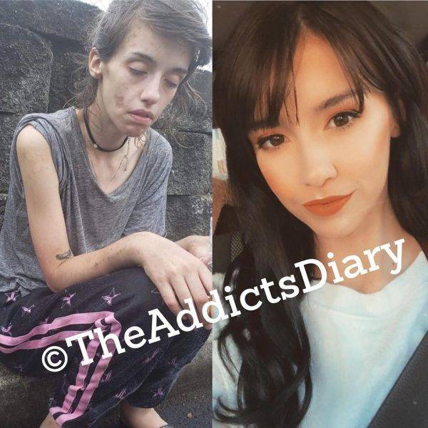 Drug Addicts Have A Chance!