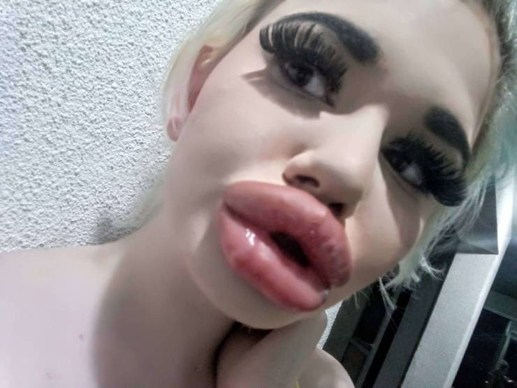 Bulgarian Girl With World's Largest Lips Enlarged Them For The 20th Time