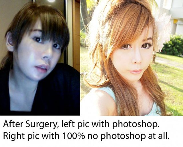 Woman Undergoes 10 Surgeries to Become Anime Character