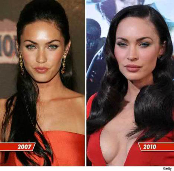 Celebrity Plastic Surgery Before & After