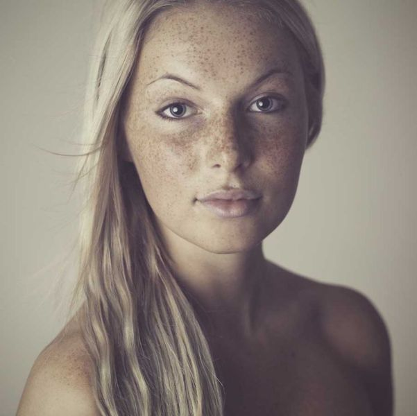 Freckles to the Front Please