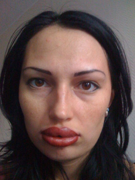 Ladies With Silicone Overdose