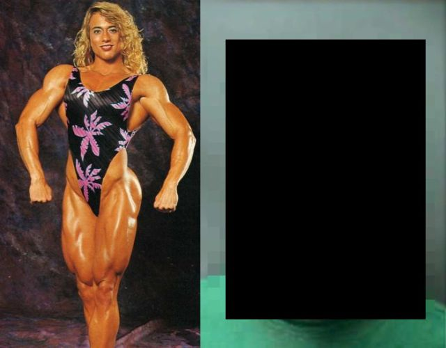 The Real Effects of 20 Years of Steroid Abuse by Women