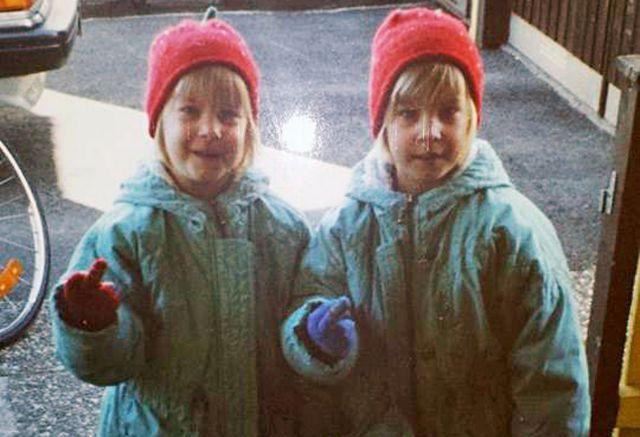 The Twins Who Have Had Identical Plastic Surgery
