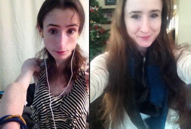 A Drastic Eating Disorder Recovery That Is Truly Amazing