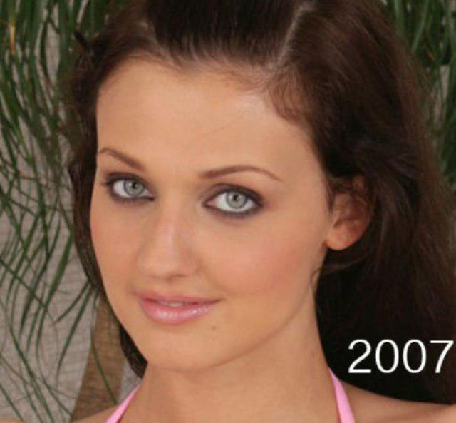 A Porn Star's Dramatic Plastic Surgery Makeover
