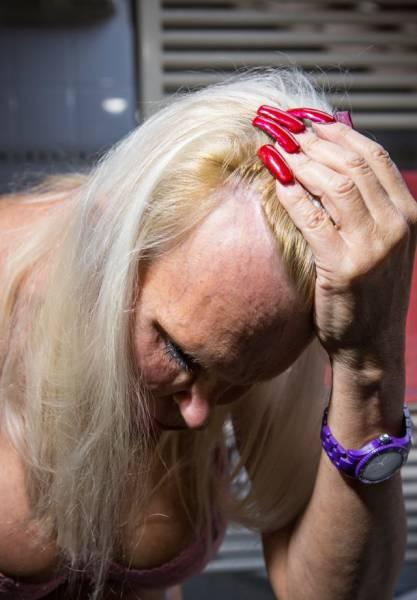 This Transgender Woman Has Taken Surgery Way Too Far