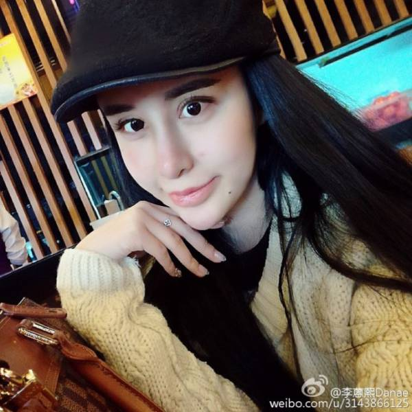 Chinese Girl Underwent Plastic Surgeries To Win Back Her Ex-Boyfriend