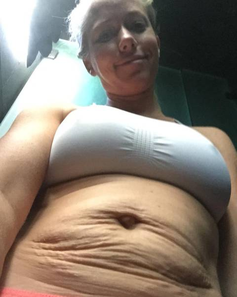 Former Playboy Model Showed Stretch Marks On Her Belly After She Had Two Babies