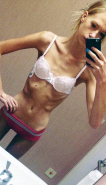 Anorexic Girl Who Was Given Only Days To Live Fights Her Way Out Of A Terrible Disease
