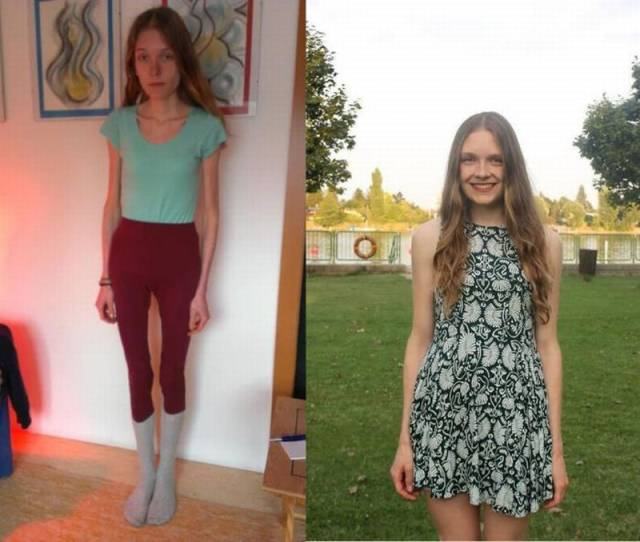 Anorexic Girl Was Only Several Days Away From Death But Managed To Recover