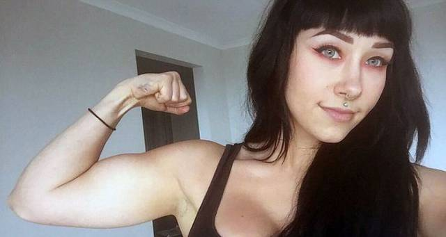 Anorexic Woman Found Willpower To Turn Her Life Around